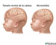 thumbs_foto-microcefalia-01